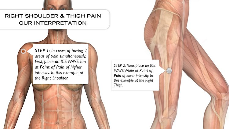 Lifewave Patches Personal Experience, Right Shoulder and Thigh Pain ...